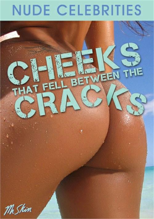 Cheeks that Fell Between the Cracks
