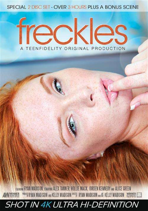 Freckles Boxcover